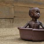 Двухлетнего Адена Салада из Кении спасла от истощения организация «Врачи без границ». (Фото AP Photo / Rebecca Blackwell.)